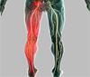 Sciatica & Brachialgia